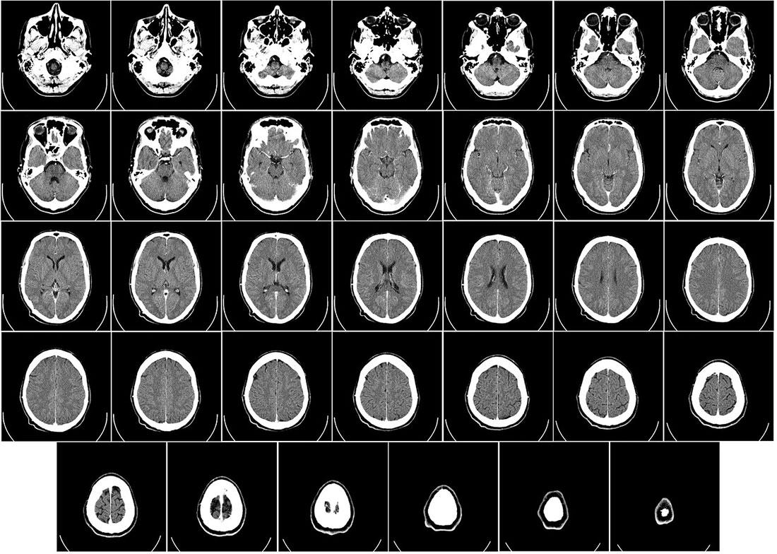 Ambito medicale: tomografia di cranio umano